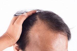 wypadanie włosów, leczenie łysienia