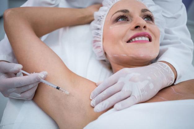 leczenie nadpotliwości botox