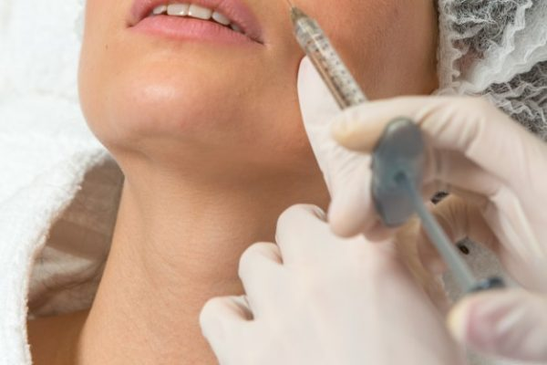 wypełnienie bruzd nosowo-wargowych kwasem hialuronowym