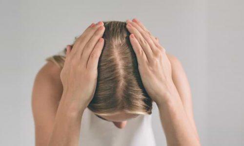 wypadanie włosów łysienie
